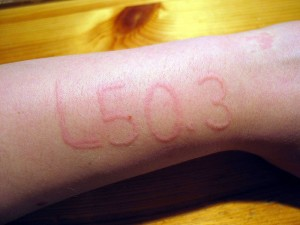 Non-miraculous Dermatographic Urticaria, or 'skin writing'